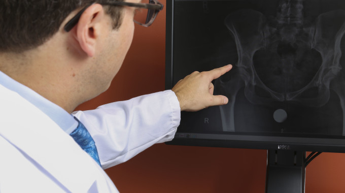 How Spinal Deformity Can Affect Hip Replacement Surgery Success Rates