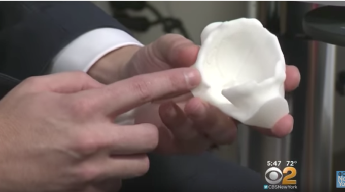 Not Your Grandparents Knee and Hip Joint Replacements